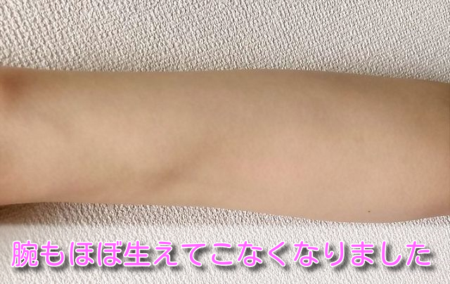 ケノンでキレイになった腕の画像