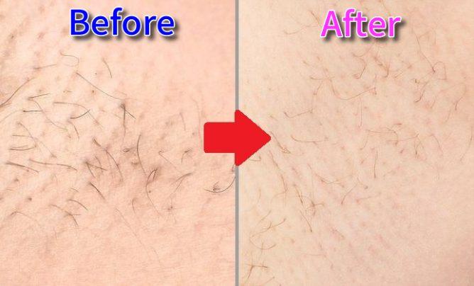 ワキ毛が脱毛ラボホームエディション使用前より細くなっている画像