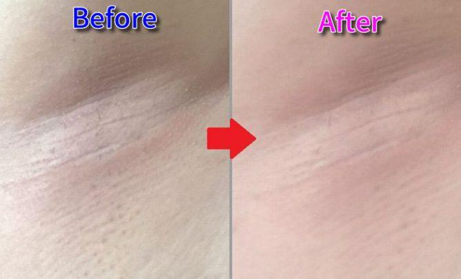 ワキの皮膚が以前よりキレイになった画像