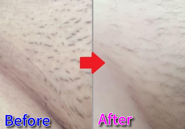 Vラインの毛が細くなって本数も減った画像